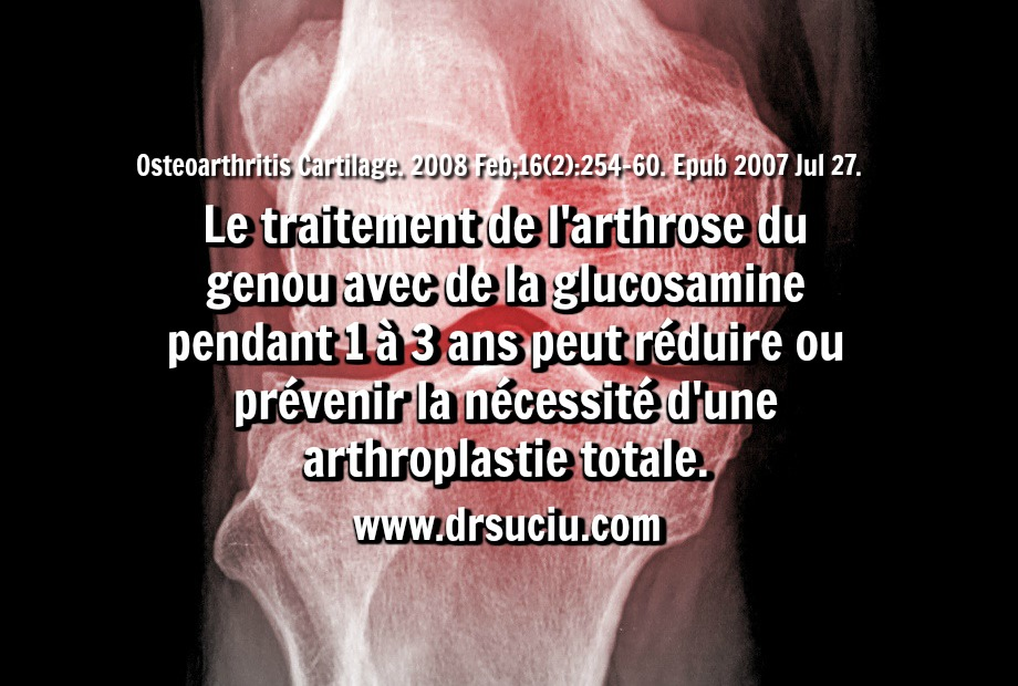 Photo La glucosamine dans le traitement de l'arthrose - drsuciu